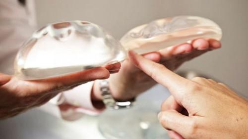 Implantes mamarios: de su selección a los registros nacionales y la colecta de incidentes